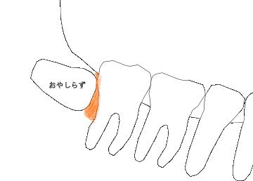 水平埋伏智歯と歯肉炎